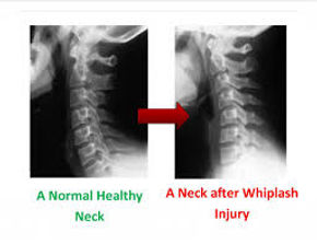 Xrays show when vertebrae move or the curve in your neck is reversed by whiplash