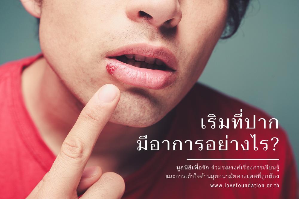 เริมที่ปาก แผลที่ปาก โรคเริม โรคติดต่อทางเพศ ออรัลเซ็กส์ ยารักษาเริม เริมหายขาดไหม