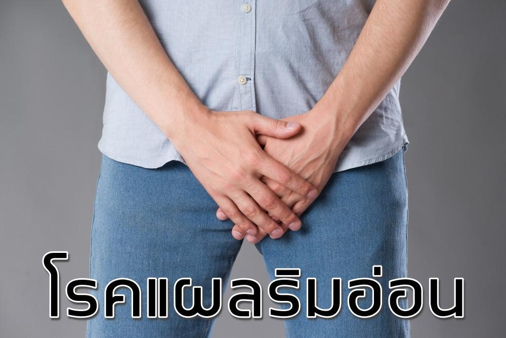 โรคแผลริมอ่อน โรคติดต่อทางเพศสัมพันธ์ อาการแผลริมอ่อน หนองฝี ฝีอักเสบ
