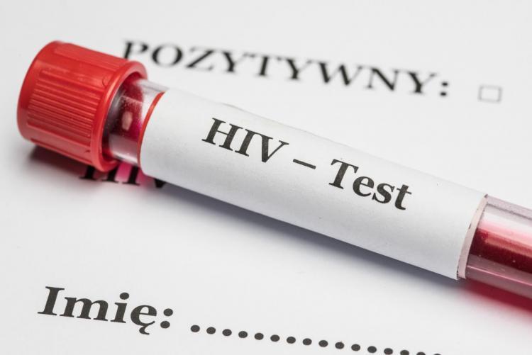 เอชไอวี HIV ตรวจเอชไอวี ตรวจเลือด ตรวจเอดส์ ผลเลือดบวก ผลเลือดลบ โรคเอดส์