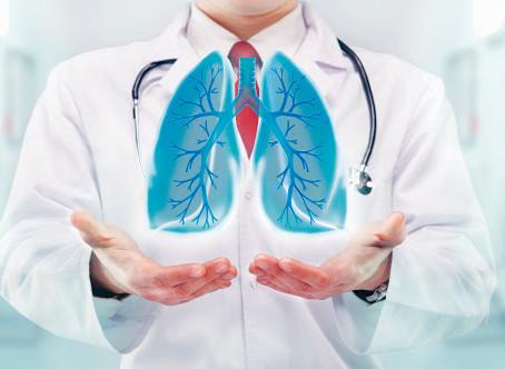 ¿Cuáles son los síntomas de un nódulo pulmonar?