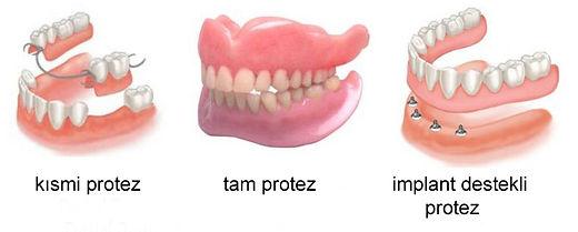 protez çeşitleri