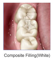 composite tooth filling