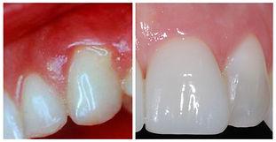 healty teeth