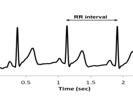 HEART RATE VARIABILITY - LF/HF