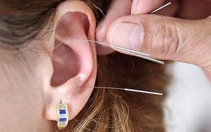 Ohrenakupunktur