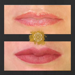 corrected lips.png