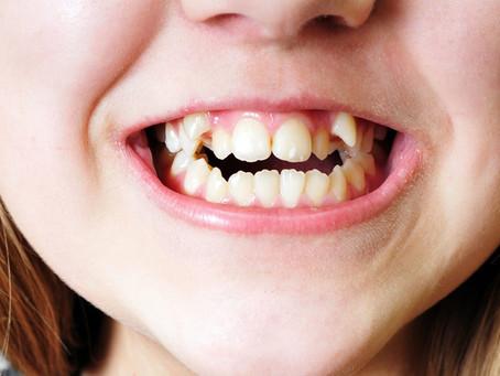 Правильное расположение зубов