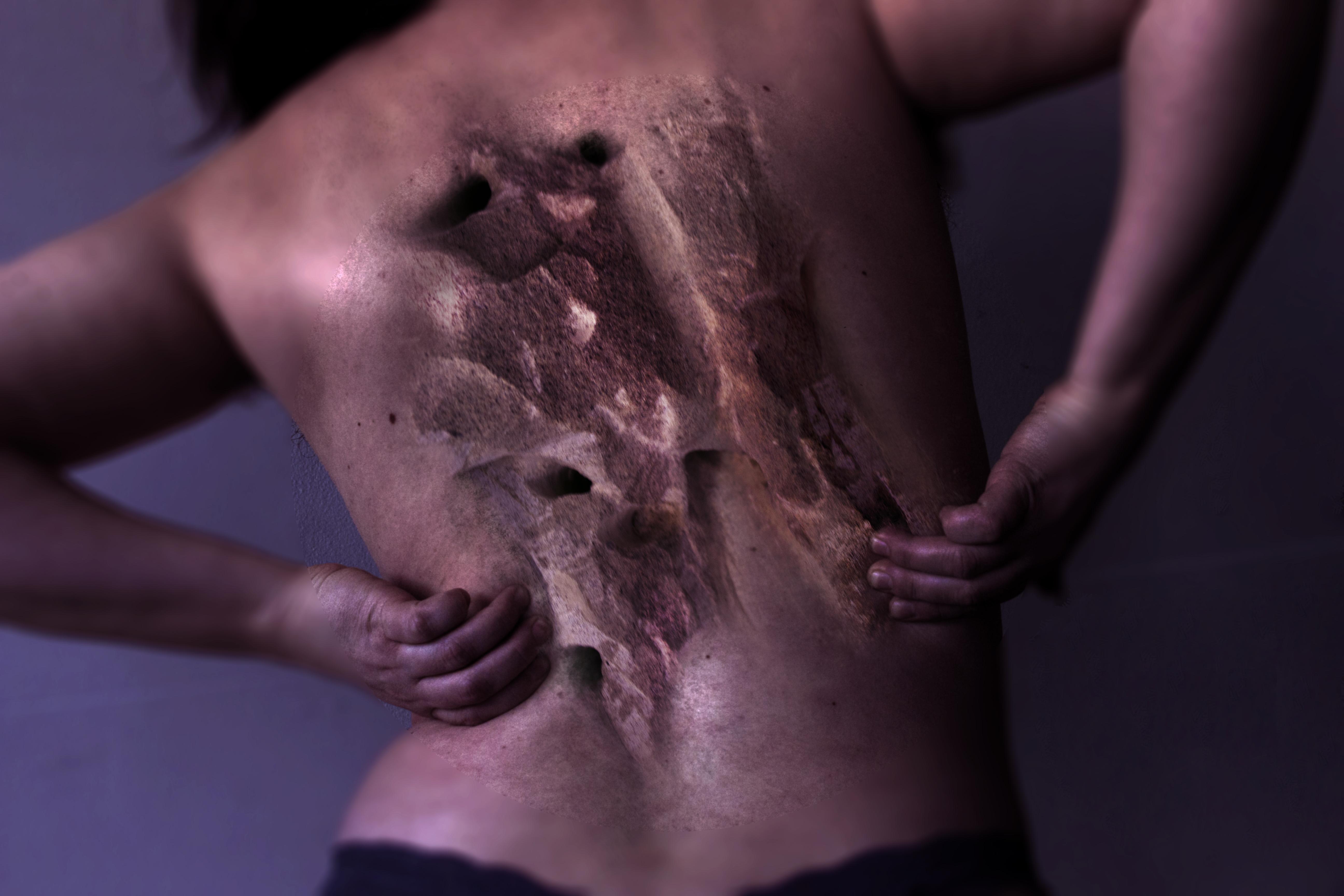 backtake