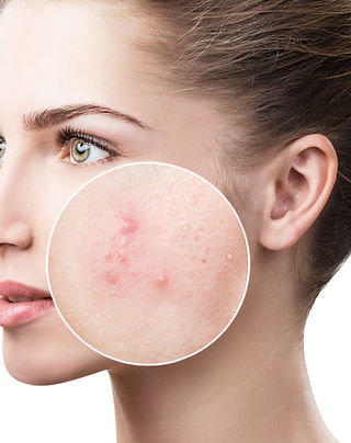 Young woman with acne skin in zoom circl