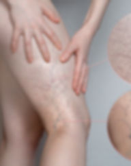 Woman shows leg with varicose veins. Mag