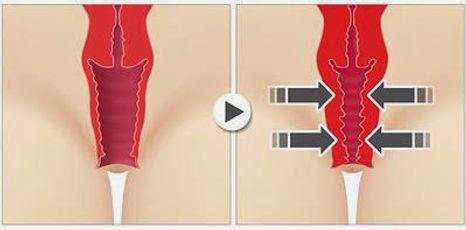 Ultrasonik Vajina Daraltma
