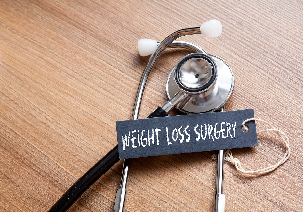 Medical Concept- weight loss surgery wor