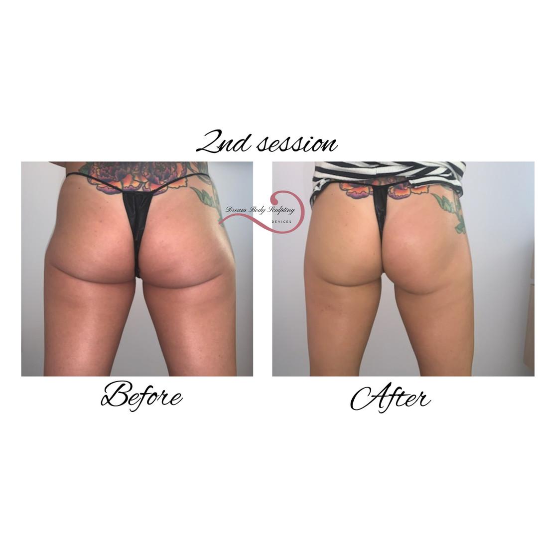 Back thigh treatment