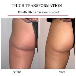 DreamBody Thigh Treatment