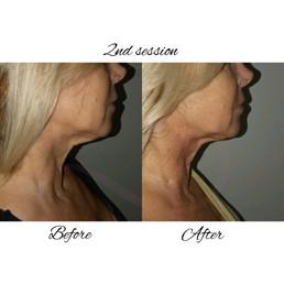 Skin tightening- Neck