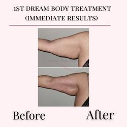 Arm Treatment