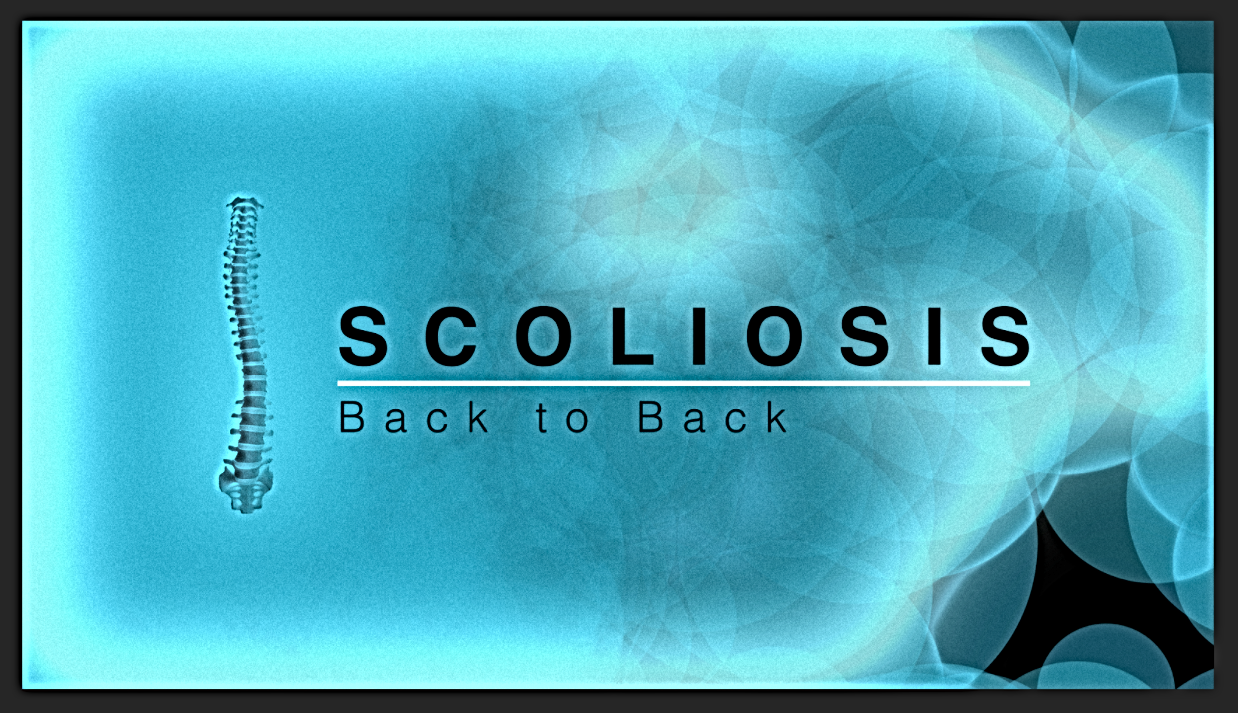 Scoliosis | Back to Back : LINK COMING SOON