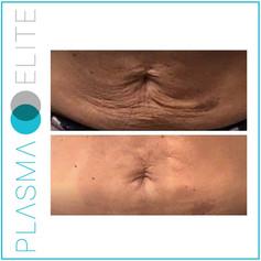 plasma-elite-stomach.jpg