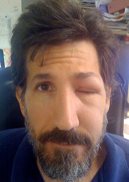 Eye Sting Ouch! - CLE Market JUNE 12, 2021 - 11AM - 3PM