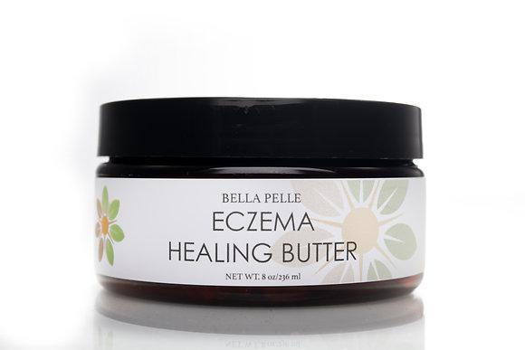 Eczema Healing Butter