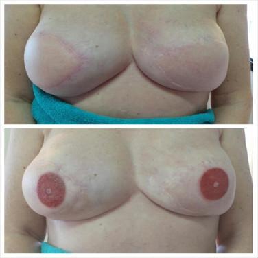 Areola Repigmentation, Breasthetics, Reconstruction, Breast Reconstruction, Nipple Reconstruction, Breast Cancer Survivors, Elizabeth Oakes, Breast defects