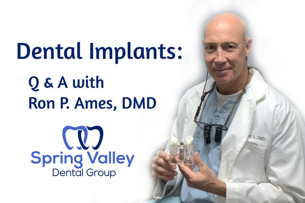 Dental Implants: Answers to Common Questions