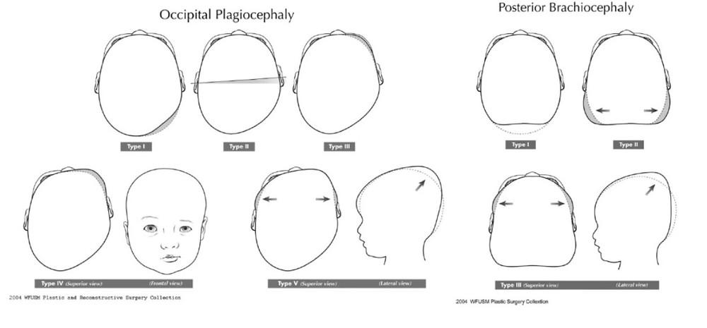 Schéma plagiocephalie et brachiocephalie