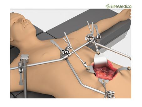 Травматологічна система Thompson - Швидке та просте налаштування