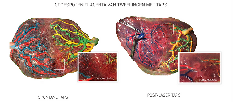 Placenta TAPS.png