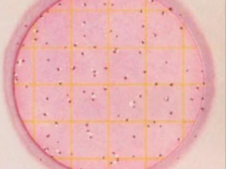 Microrganismos indicadores: coliformes
