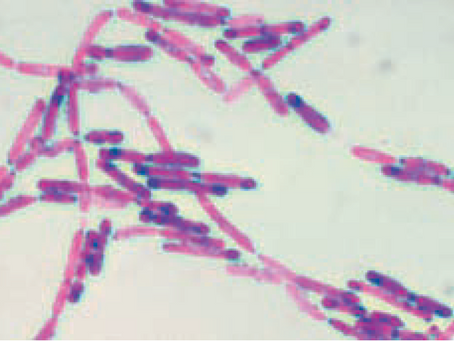 Gastroenterite por Bacillus cereus