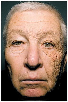 Sun Damage Cynthia Rivas Skin Care