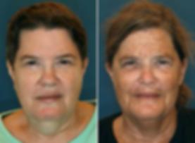 Sun Damage Twin Study Cynthia Rivas Skin