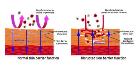 The Skins Barrier