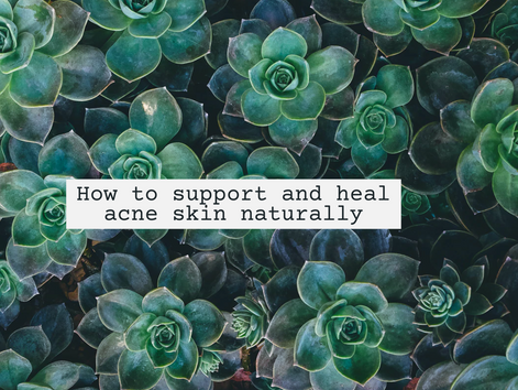 How to support and heal acne skin naturally