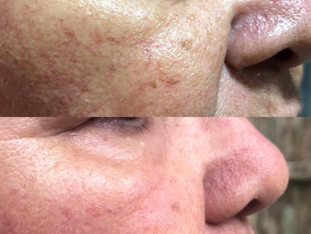 Skin Rejuvenation Facials with BroadBand Light: Mii Studio Beauty Solutions Burleigh Heads