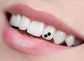 Bijuterie dentara