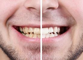 promotie albire dentara sector 3.jpg