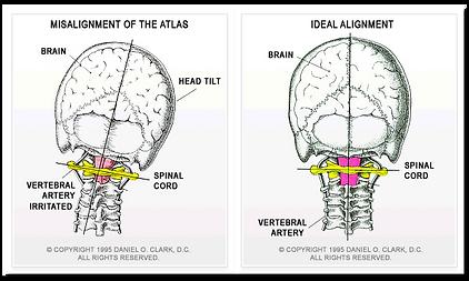 atlas misalignment