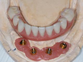 שיניים ביום