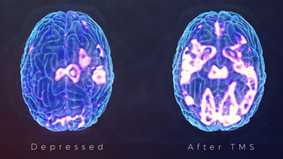 TMS Therapy Explained