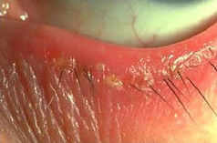 Seborrhoeic or Squamous Blepharitis