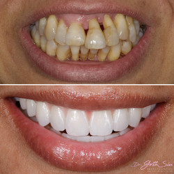 Ceramic fixed in dental implants