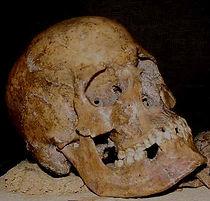 Thea acquedolci cranio