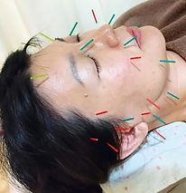 美容鍼灸 京都