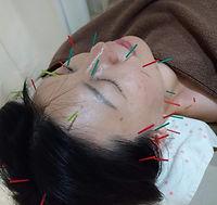 美容鍼灸.jpg