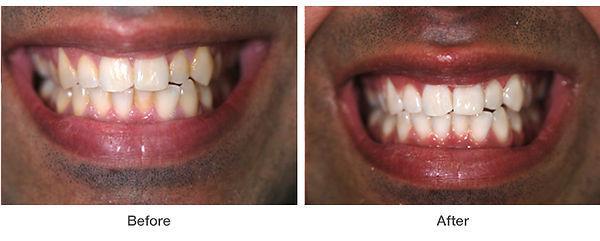 whitening-example3.jpg