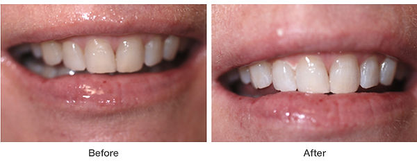 whitening-example2.jpg