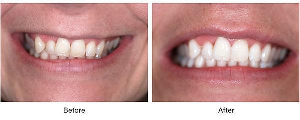 whitening-example1.jpg